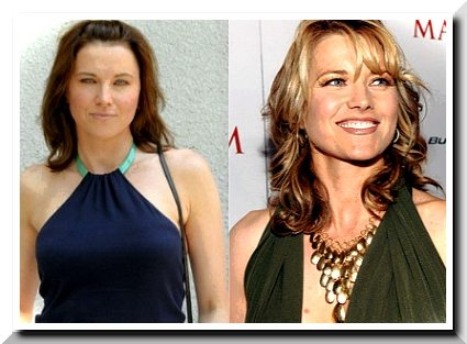 Lucy Lawless Plastic Surgery – Was it a fake beauty?