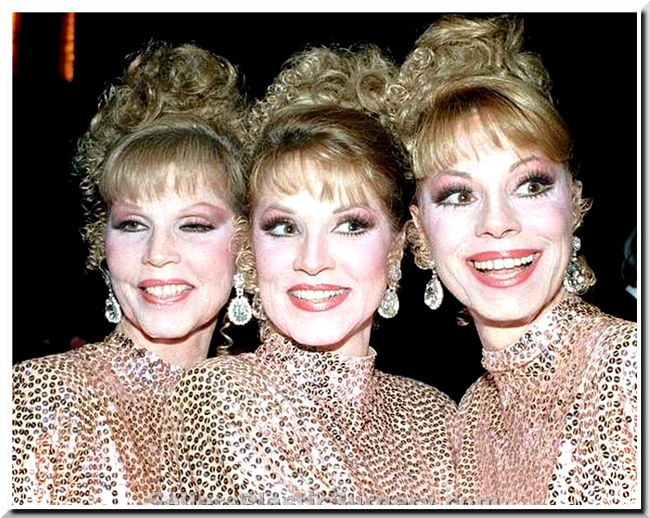 Did Mcguire Sisters Have Plastic Surgery?