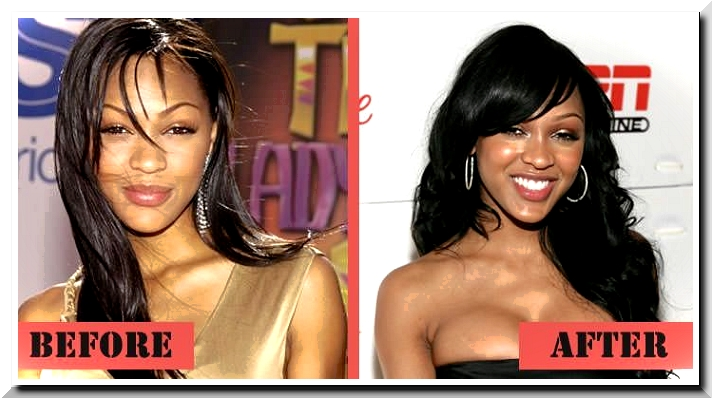 Did Meagan Good really have the Plastic Surgery?